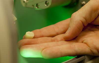 cerec dental crown on fingertips
